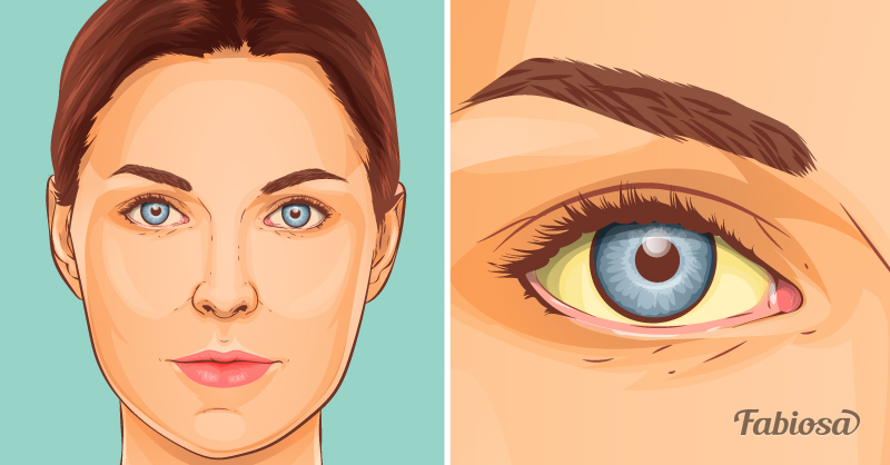 შენი სახე შენი ჯანმრთელობის ანარეკლია - 8 დაავადება, რომელზეც ჩვენი სახე მიგვანიშნებს