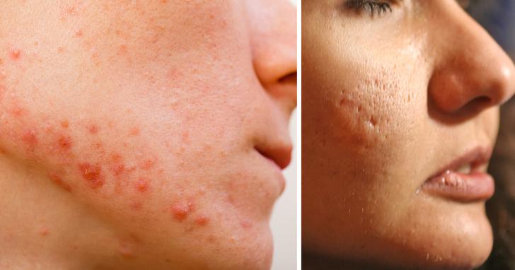 ჩვენ გასწავლით ნაოჭების, მუწუკების და კიდევ 9 სახის კანის პრობლემის მოგვარების გზებს