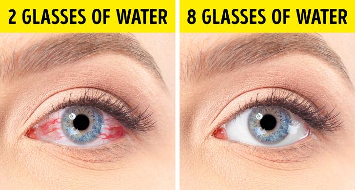 10 რჩევა, რომელიც თქვენს გამომშრალ თვალებს განკურნავს