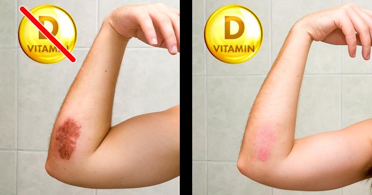 თუ ორგანიმი D ვიტამინს საჭიროებს, მაშინ თქვენ აუცილებლად გექნებათ ეს სიმპტომები