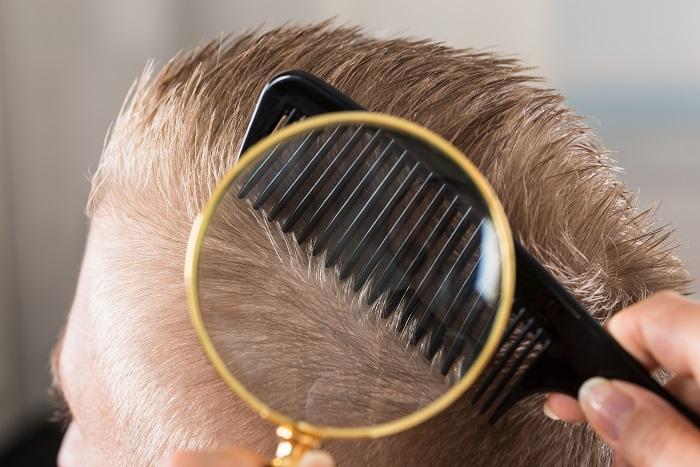 ფისის საპონი: არანაირი ოფლი, რძიანა, მუწუკები და თმის ცვენა. ეს უიაფესი საშუალება თქვენს სამსახურშია!