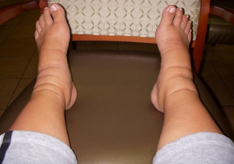 არ მისცეთ ლიმფას უფლება, რომ შეგუბდეს! თუ ფეხები გისივდებათ, არ დაუშვათ დამღუპველი შეცდომები...