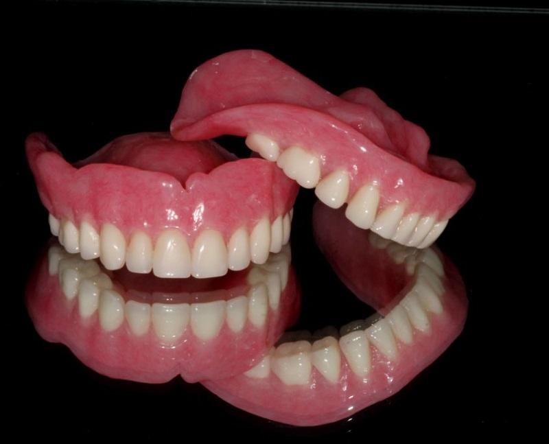 რომელია უკეთესი კბილისთვის - შტიფტი თუ იმპლანტი?
