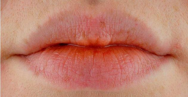 5 სიმპტომი, რომლებიც  ავიტამინოზზე მიუთითებს