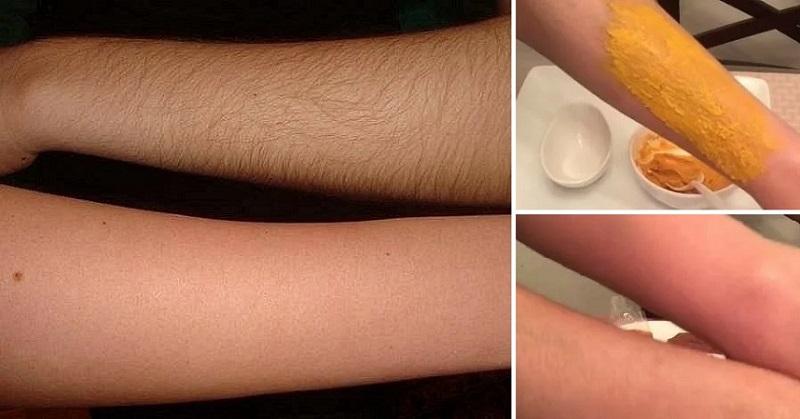 ეს 6 სახალხო რეცეპტი სხეულიდან თმას უსწრაფესად მოგაშორებთ.