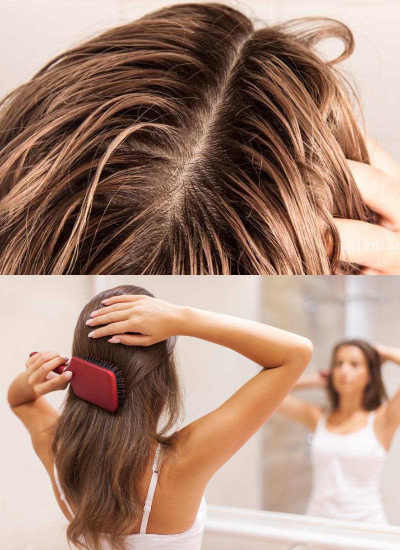 თუ თმა ელვის სისწრაფით გცვივათ, მაშინ თმის ტონიკი როზმარინით უნდა მოამზადოთ