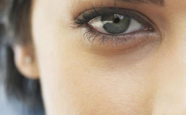 8 ხერხი: მოიცილეთ შავი წერტილები თვალების გარშემო