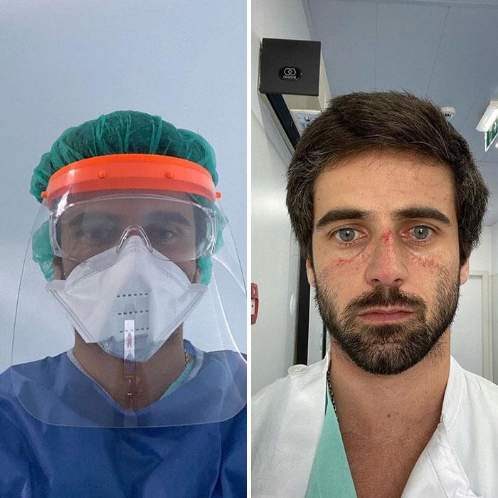 მუშაობით გადაღლილი ექიმების 30 გულსატკენი ფოტო. ადამიანური განცდები სახეზე აწერიათ.